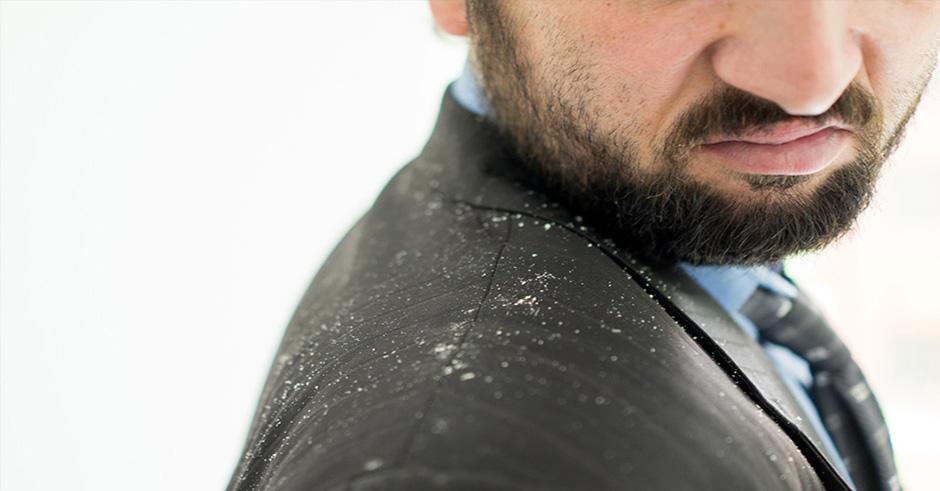 مواد طبیعی موثر در درمان شوره سر