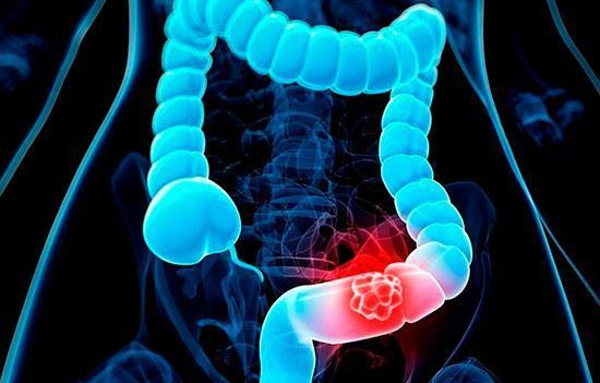 نشانه های سرطان کولون؛ از نفخ و یبوست تا کم خونی