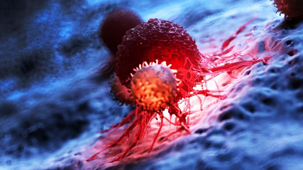 سلول های سرطانی با استفاده از چارچوب های آلی فلزی نابود می شوند